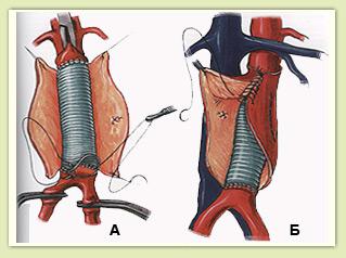 Открытое протезирование аорты