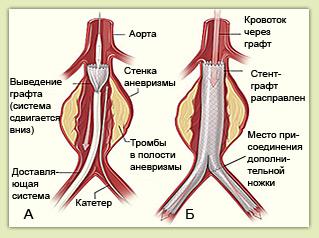 Эндопротезирование аорты