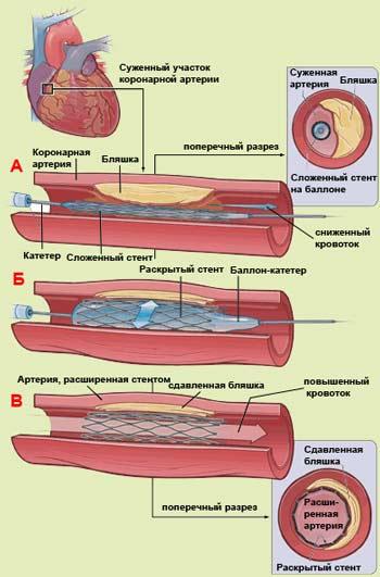 Источник: http://wwwpuchkovkru/ginekologiya/mioma-matki/metodi-lechenia